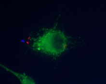 Electron micrograph of a Legionella pneumophila bacterium