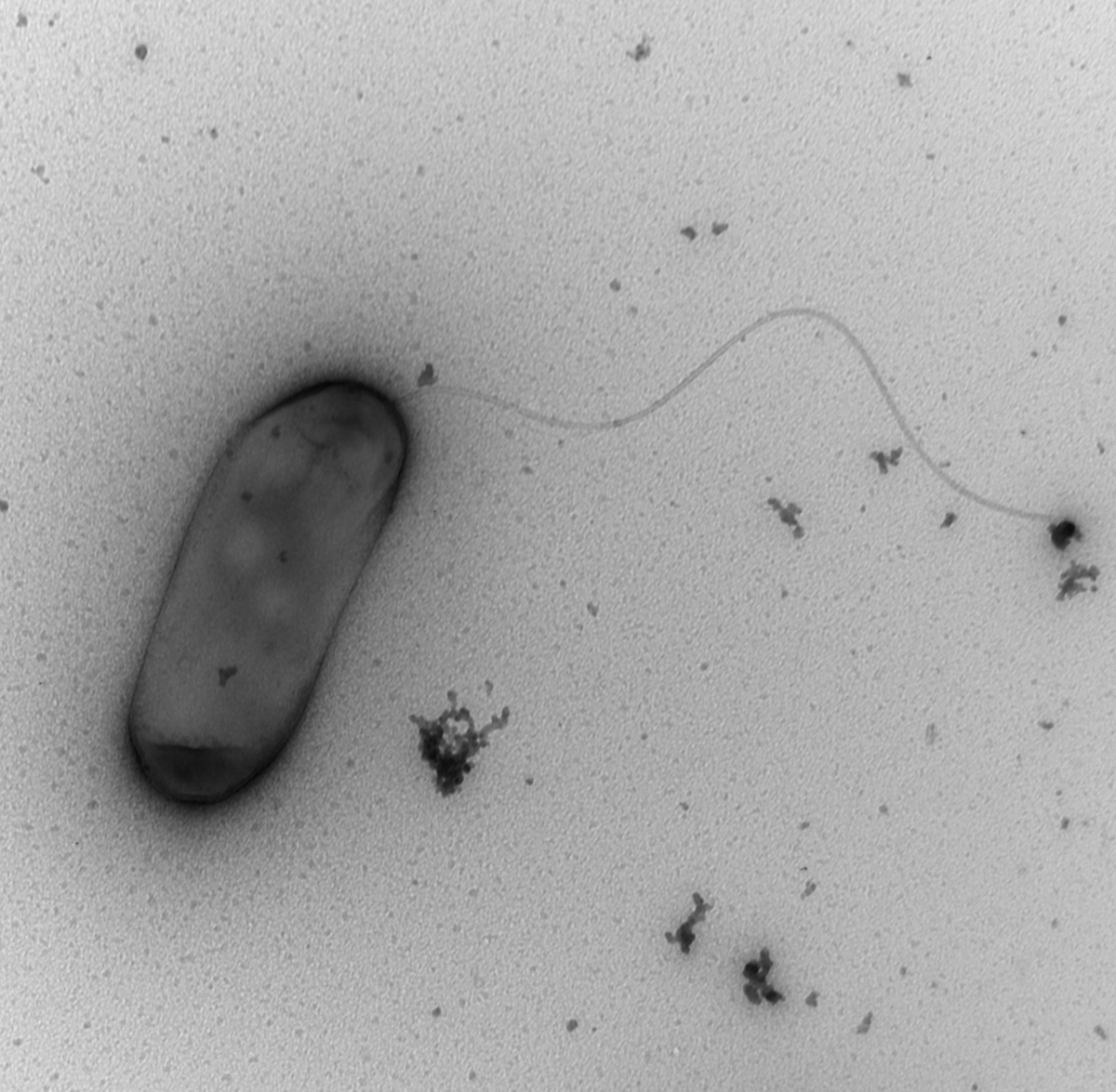 Macrophage infected with the bacterial pathogen Legionella ...